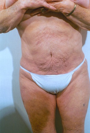 Liposuction case 13 after photo