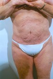 Liposuction, Tummy Tuck After Photo | Savoy, IL | Dr. G.D. Castillo