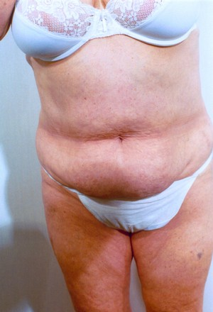 Liposuction case 13 before photo