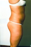 Liposuction After Photo | Savoy, IL | Dr. G.D. Castillo