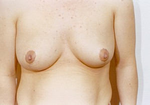 Breast Lift case 10 after photo