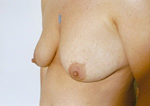 Breast Asymmetry Before Photo | Savoy, IL | Dr. G.D. Castillo