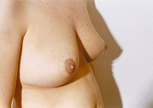 Breast Asymmetry After Photo | Savoy, IL | Dr. G.D. Castillo