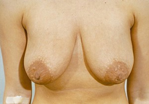 Breast Lift Before Photo | Savoy, IL | Dr. G.D. Castillo