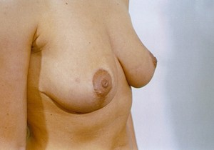 Breast Lift After Photo | Savoy, IL | Dr. G.D. Castillo