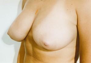 Breast Asymmetry Before Photo | Savoy, IL | Dr. G.D. Castillo