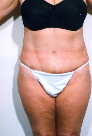 Liposuction case 5 after photo