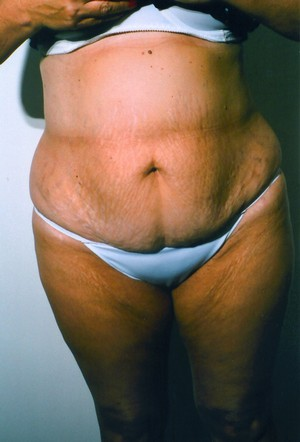 Liposuction case 5 before photo