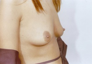Breast Augmentation Before Photo   Savoy, IL   Dr. G.D. Castillo