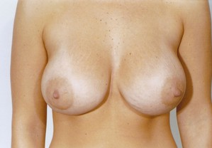 Breast Augmentation case 17 after photo