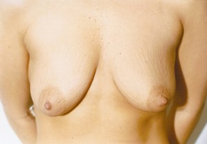 Breast Augmentation case 17 before photo