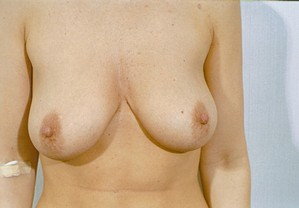 Breast Augmentation case 18 before photo