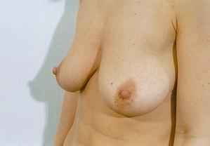 Breast Augmentation Before Photo | Savoy, IL | Dr. G.D. Castillo