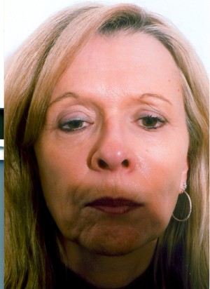 Chin Surgery case 21 before photo