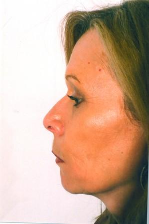 Chin Surgery Before Photo | Savoy, IL | Dr. G.D. Castillo
