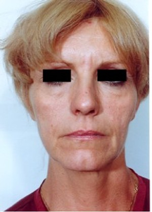 Eyelid Surgery case 23 before photo