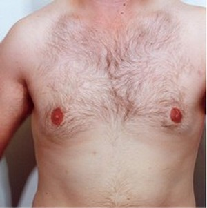 Male Breast Reduction case 30 after photo