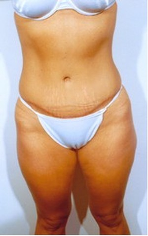 Tummy Tuck case 40 after photo