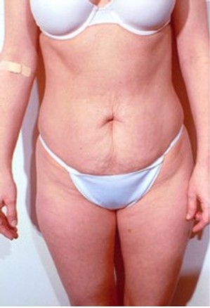 Tummy Tuck case 41 before photo