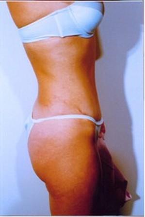 Tummy Tuck After Photo | Savoy, IL | Dr. G.D. Castillo