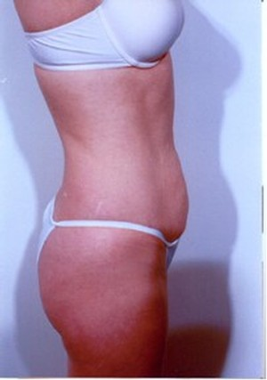 Tummy Tuck Before Photo | Savoy, IL | Dr. G.D. Castillo